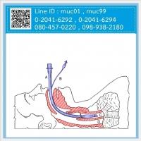 11.03 ท่อช่วยหายใจ (Endotracheal Tube / ET Tube)