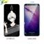 (025-872)เคสมือถือ Case Huawei Nova 2i/Mate10Lite เคสนิ่มลายการ์ตูนหลากหลายพร้อมฟิล์มหน้าจอลายการ์ตูนเดียวกัน thumbnail 22