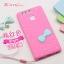 (412-063)เคสมือถือ Case Huawei P9 เคสนิ่ม 3D ไอศครีม โบว์น่ารักๆ thumbnail 15