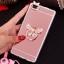 (025-592)เคสมือถือ Case Huawei P8 Lite เคสนิ่มแววหรูติดคริสตัล พร้อมเซทแหวนเพชรวางโทรศัพท์ และสายคล้องคอกดแยกออกได้ thumbnail 10