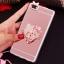 (025-592)เคสมือถือ Case Huawei P8 Lite เคสนิ่มแววหรูติดคริสตัล พร้อมเซทแหวนเพชรวางโทรศัพท์ และสายคล้องคอกดแยกออกได้ thumbnail 15