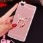 (025-592)เคสมือถือ Case Huawei P8 Lite เคสนิ่มแววหรูติดคริสตัล พร้อมเซทแหวนเพชรวางโทรศัพท์ และสายคล้องคอกดแยกออกได้ thumbnail 16
