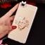(025-592)เคสมือถือ Case Huawei P8 Lite เคสนิ่มแววหรูติดคริสตัล พร้อมเซทแหวนเพชรวางโทรศัพท์ และสายคล้องคอกดแยกออกได้ thumbnail 3