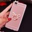 (025-592)เคสมือถือ Case Huawei P8 Lite เคสนิ่มแววหรูติดคริสตัล พร้อมเซทแหวนเพชรวางโทรศัพท์ และสายคล้องคอกดแยกออกได้ thumbnail 18