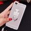 (025-592)เคสมือถือ Case Huawei P8 Lite เคสนิ่มแววหรูติดคริสตัล พร้อมเซทแหวนเพชรวางโทรศัพท์ และสายคล้องคอกดแยกออกได้ thumbnail 19
