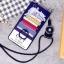 (025-404)เคสมือถือ Case OPPO Neo 5s/Joy5/a31t เคสลายการ์ตูนกราฟฟิคน่ารักๆ thumbnail 4