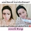 FEORA Mousse Cleanser ฟีโอร่ามูสคลีนเซอร์ thumbnail 11