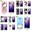 (025-872)เคสมือถือ Case Huawei Nova 2i/Mate10Lite เคสนิ่มลายการ์ตูนหลากหลายพร้อมฟิล์มหน้าจอลายการ์ตูนเดียวกัน thumbnail 1