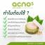 ครีมมาส์กลดสิว acno5 Anti-acne whitening mask ขนาด 30 กรัม (ส่งฟรี EMS) thumbnail 2