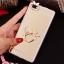 (025-592)เคสมือถือ Case Huawei P8 Lite เคสนิ่มแววหรูติดคริสตัล พร้อมเซทแหวนเพชรวางโทรศัพท์ และสายคล้องคอกดแยกออกได้ thumbnail 5
